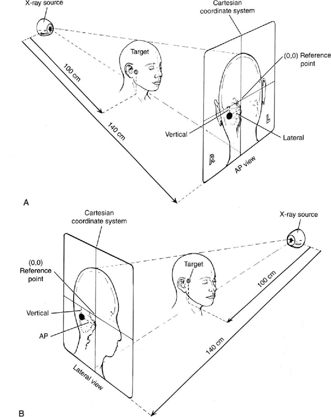 linac radiosurgery semantic scholar 44 Magnum Rifle