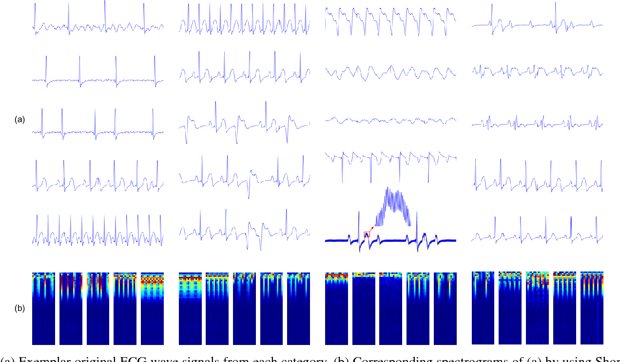 Figure 3 for Fine-grained ECG Classification Based on Deep CNN and Online Decision Fusion