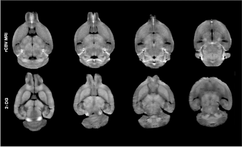 Figure 6 from R6/2 Huntington\'s disease mice develop early and ...