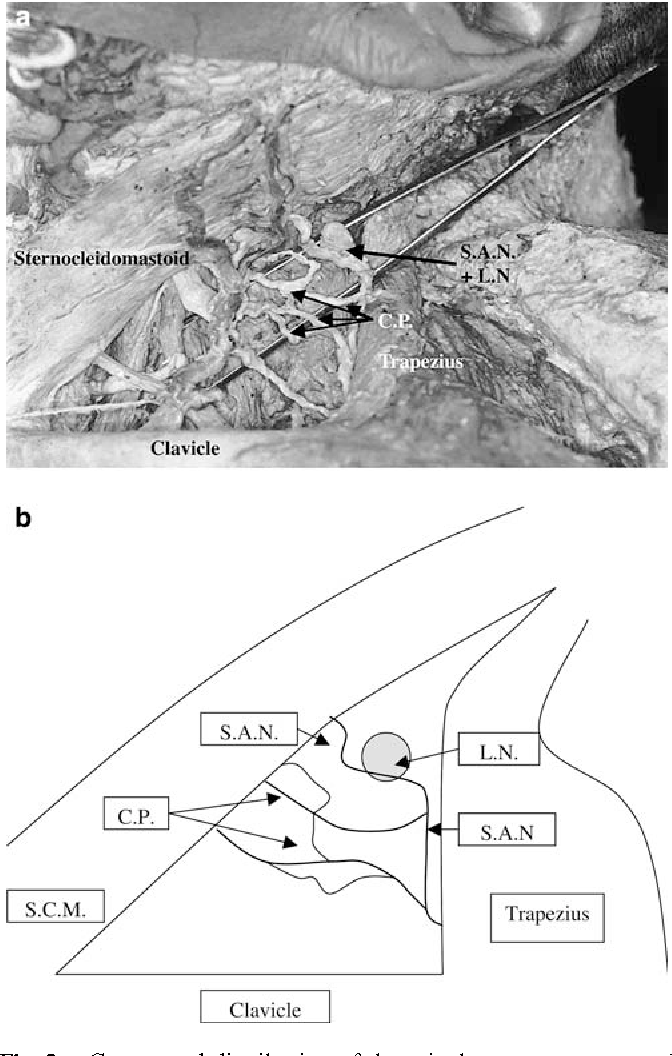 Variations in the surface anatomy of the spinal accessory nerve in ...