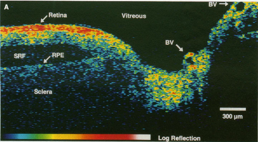 Figure 1 for State-of-the-Art in Retinal Optical Coherence Tomography Image Analysis