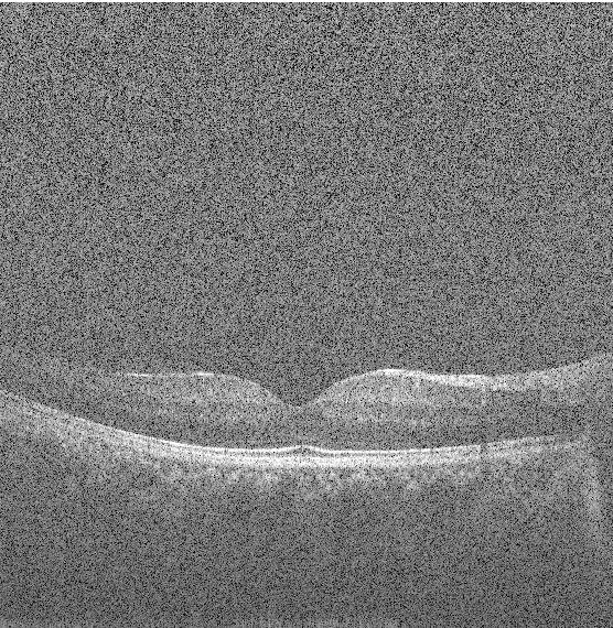 Figure 3 for State-of-the-Art in Retinal Optical Coherence Tomography Image Analysis