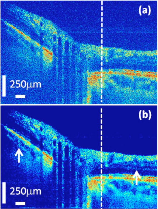 Figure 4 for State-of-the-Art in Retinal Optical Coherence Tomography Image Analysis