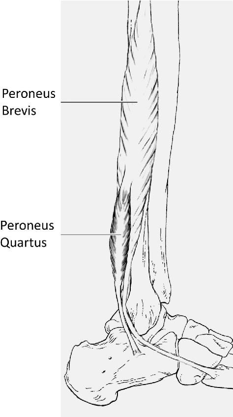 Figure 1 From The Accessory Peroneal Fibular Muscles Peroneus
