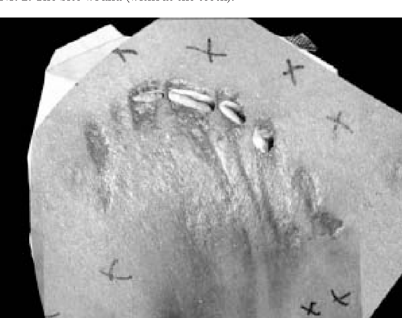 Fig. 3. The bite wound with the teeth penetrating from the background.