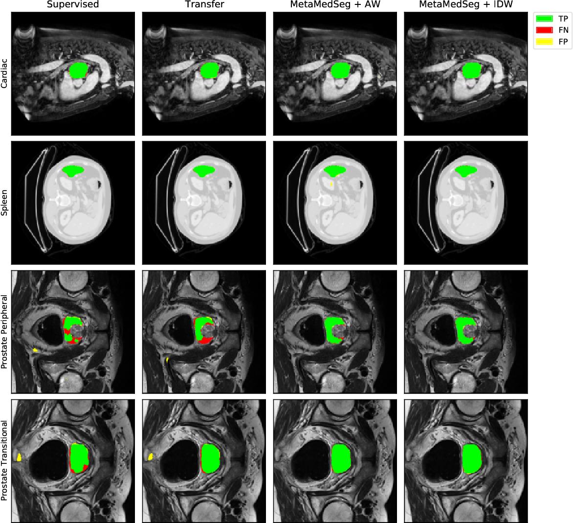 Figure 4 for MetaMedSeg: Volumetric Meta-learning for Few-Shot Organ Segmentation