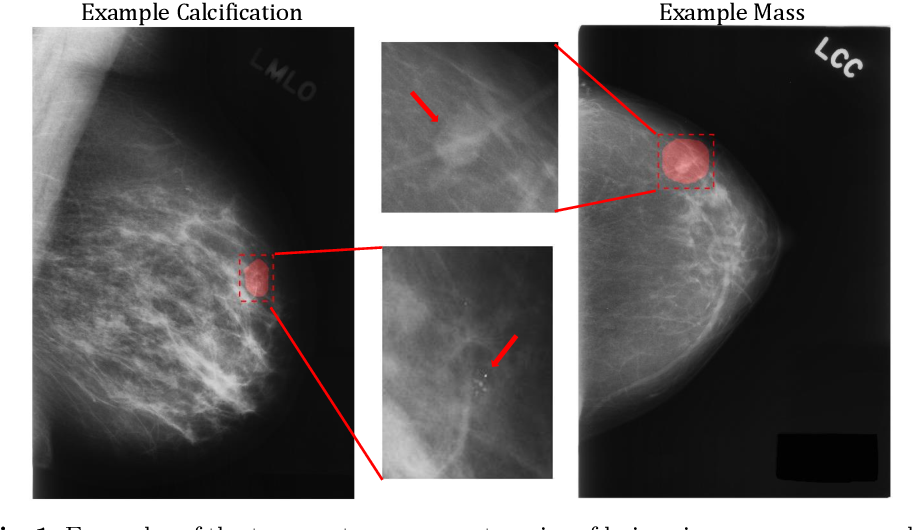 Figure 1 for A Multi-Scale CNN and Curriculum Learning Strategy for Mammogram Classification