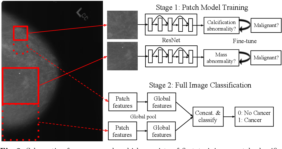 Figure 2 for A Multi-Scale CNN and Curriculum Learning Strategy for Mammogram Classification