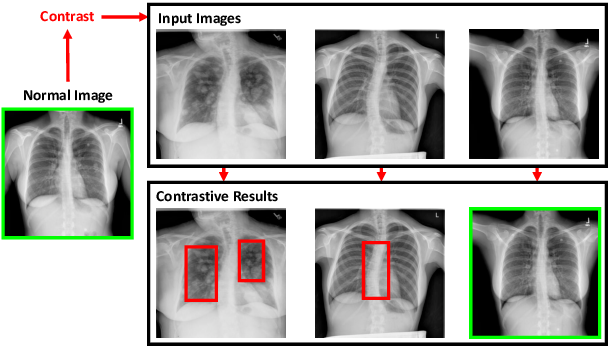Figure 1 for Contrastive Attention for Automatic Chest X-ray Report Generation
