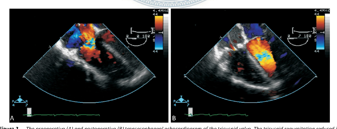 Figure 2 The Preoperative A And Postoperative B Transesophageal Echocardiogram Of