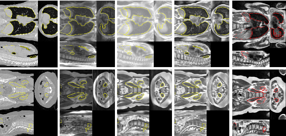 Figure 2 for Generative Adversarial Networks for MR-CT Deformable Image Registration