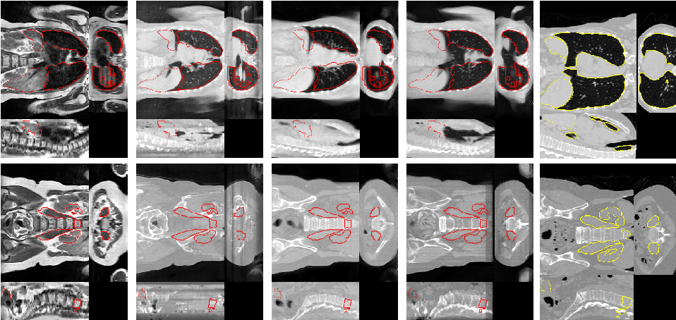 Figure 4 for Generative Adversarial Networks for MR-CT Deformable Image Registration