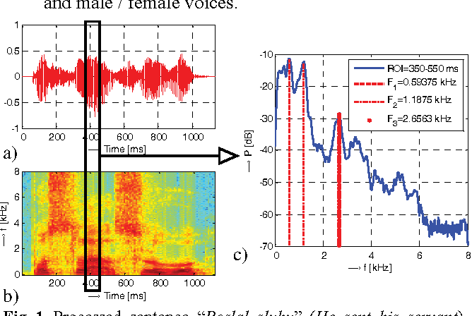 Figure 1 from Comparison of spectral and prosodic parameters of male