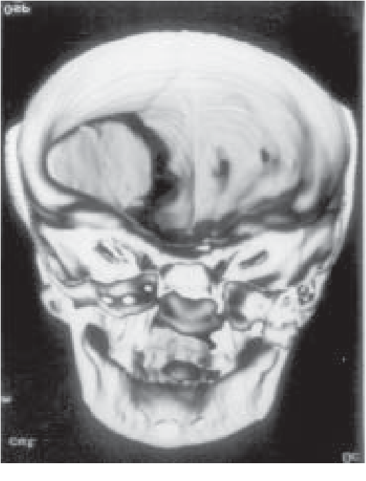 Fig. 2. Three dimensional CT scan of the head showing repaired frontal bone defect with a bone graft.