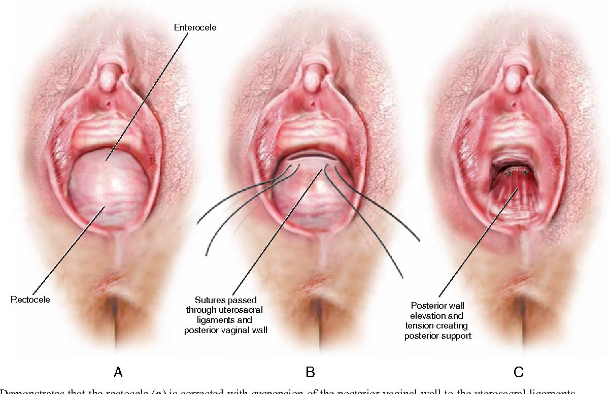 Vaginal Prolapse-1206