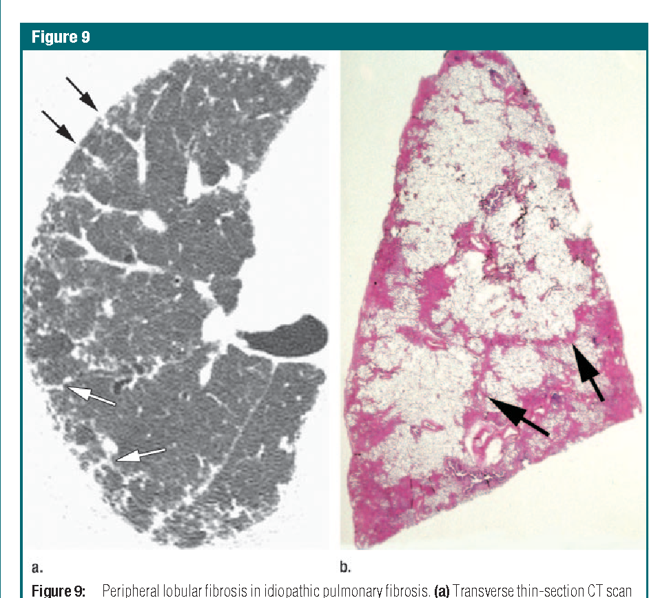 Thin-section CT of the secondary pulmonary lobule: anatomy and the ...