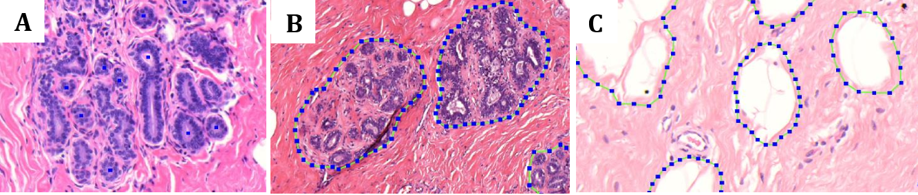 Figure 1 for Deep learning assessment of breast terminal duct lobular unit involution: towards automated prediction of breast cancer risk