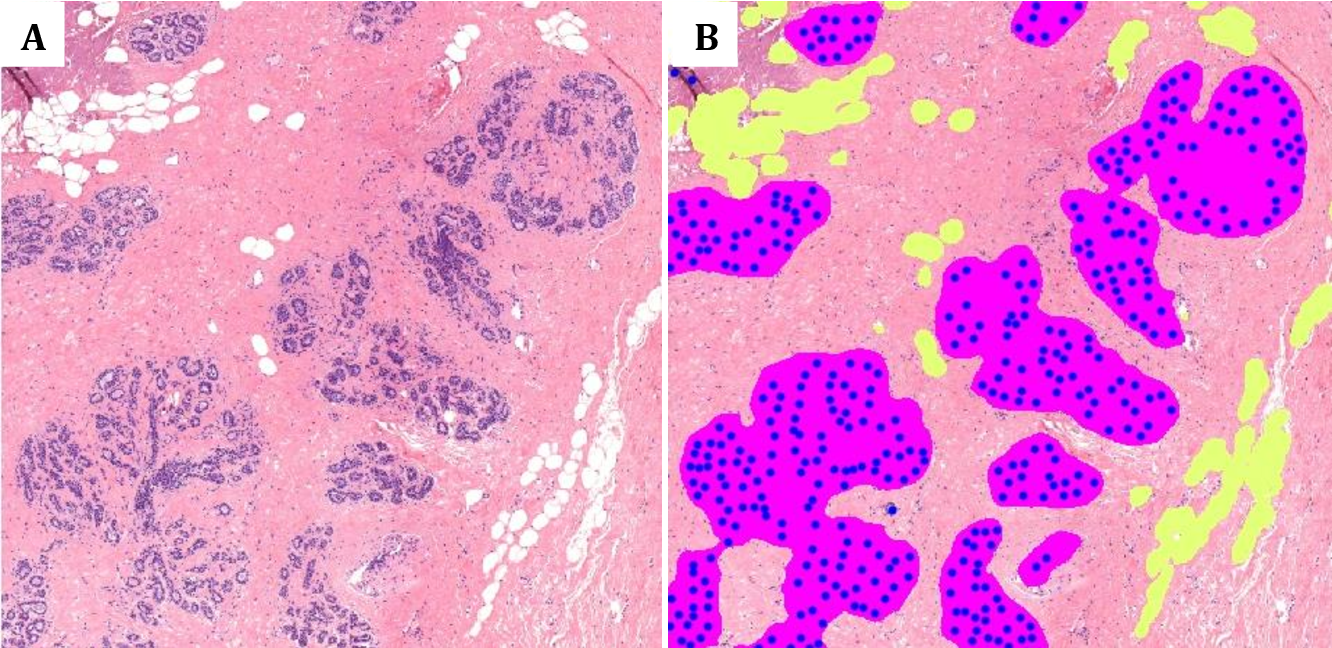 Figure 4 for Deep learning assessment of breast terminal duct lobular unit involution: towards automated prediction of breast cancer risk