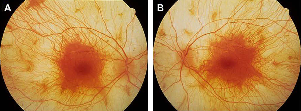 Choroideremia New Findings From Ocular Pathology And Review Of