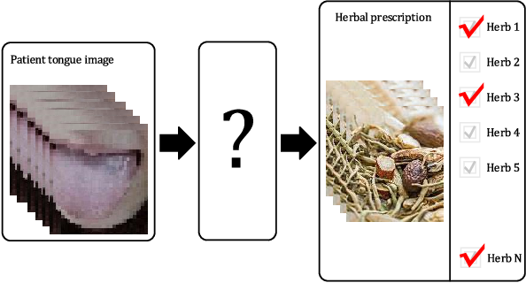 Figure 1 for Automatic construction of Chinese herbal prescription from tongue image via CNNs and auxiliary latent therapy topics