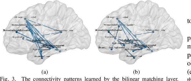 Figure 3 for Integrative Analysis of Patient Health Records and Neuroimages via Memory-based Graph Convolutional Network