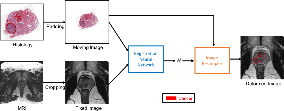 Figure 1 for Weakly Supervised Registration of Prostate MRI and Histopathology Images
