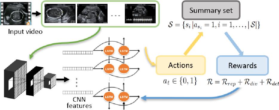 Figure 1 for Ultrasound Video Summarization using Deep Reinforcement Learning