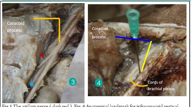Figure 3 From Infracoracoid Vertical Approach For Infraclavicular