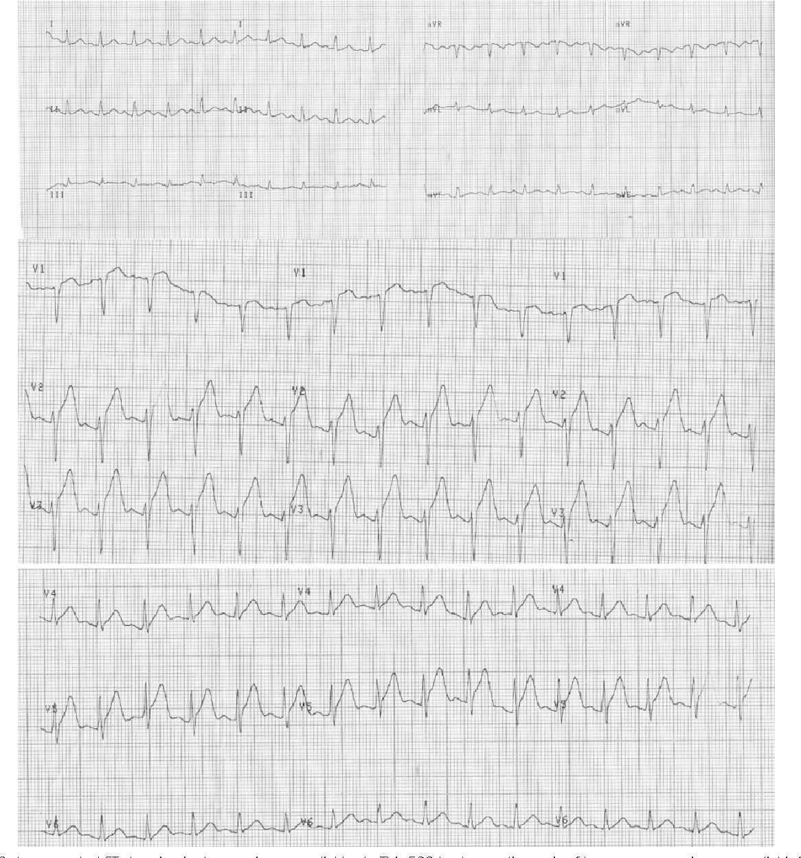 Fig. 1. The ECG shows marked ST elevation in the anterior precordial leads. This ECG leads to a diagnosis of hyperacute anterior myocardial infarction. ECG: electrocardiography.