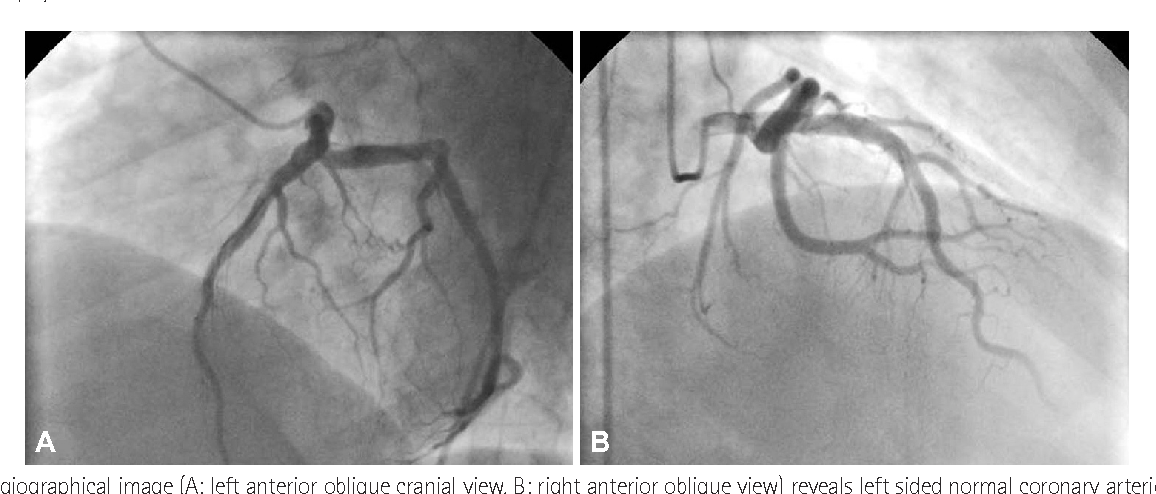 Fig. 2. This angiographical image (A: left anterior oblique cranial view, B: right anterior oblique view) reveals left sided normal coronary arteries except slow coronary flow in the left anterior descending artery.