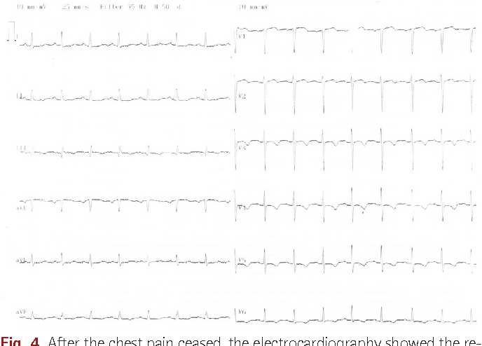 Fig. 4. After the chest pain ceased, the electrocardiography showed the resolution ST elevation and negative T waves between V 3-6 leads.