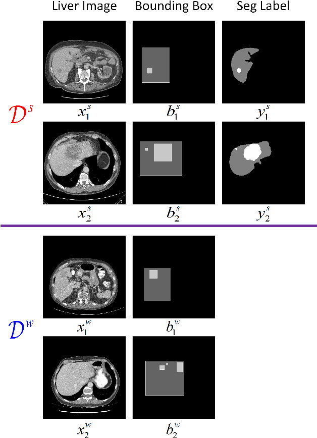 Figure 1 for A Teacher-Student Framework for Semi-supervised Medical Image Segmentation From Mixed Supervision