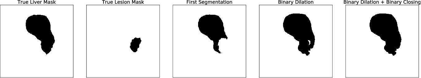 Figure 2 for Liver Lesion Segmentation with slice-wise 2D Tiramisu and Tversky loss function