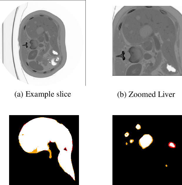Figure 3 for Liver Lesion Segmentation with slice-wise 2D Tiramisu and Tversky loss function