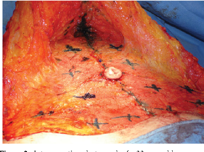 Figure 2 from Use of Quilting Sutures During Abdominoplasty to