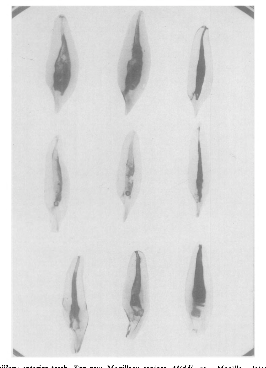 Figure 1 from Root canal anatomy of the human permanent teeth ...