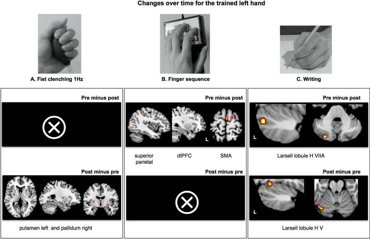 Changes in cortical, cerebellar and basal ganglia representation ...