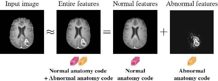 Figure 1 for Decomposing Normal and Abnormal Features of Medical Images into Discrete Latent Codes for Content-Based Image Retrieval