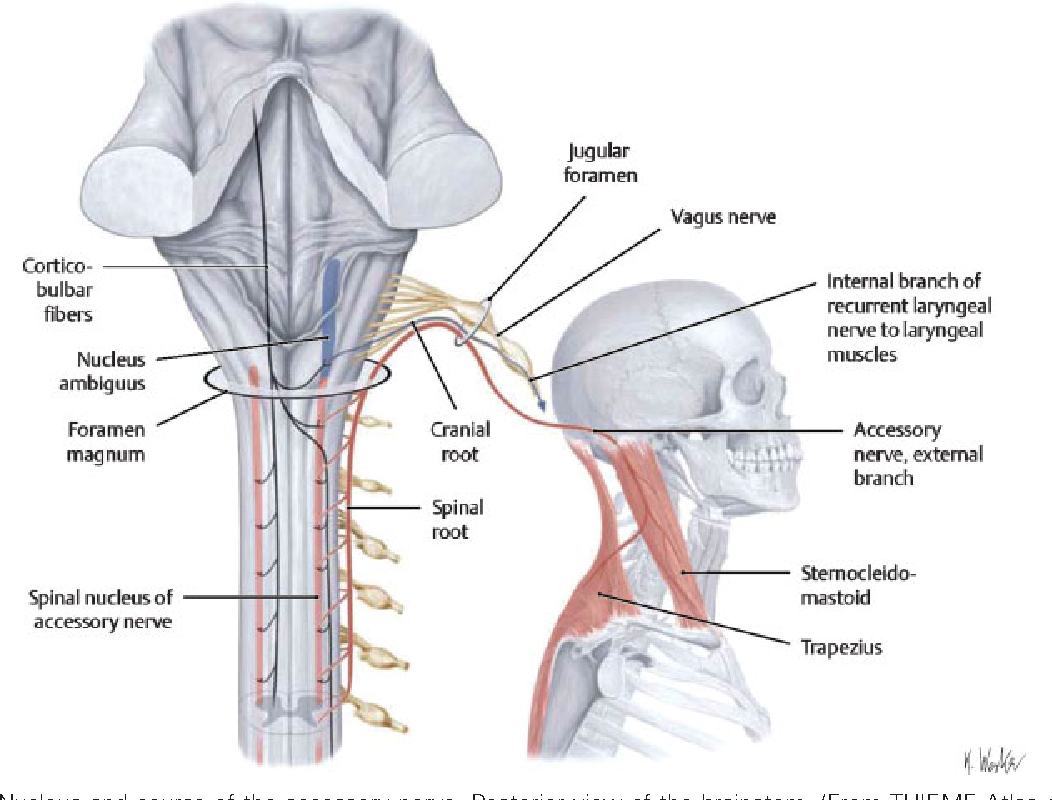 Figure 1 from Spinal accessory nerve lesions. - Semantic Scholar