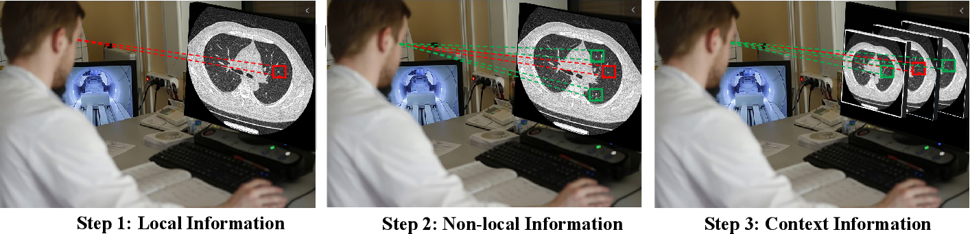 Figure 1 for RIDnet: Radiologist-Inspired Deep Neural Network for Low-dose CT Denoising