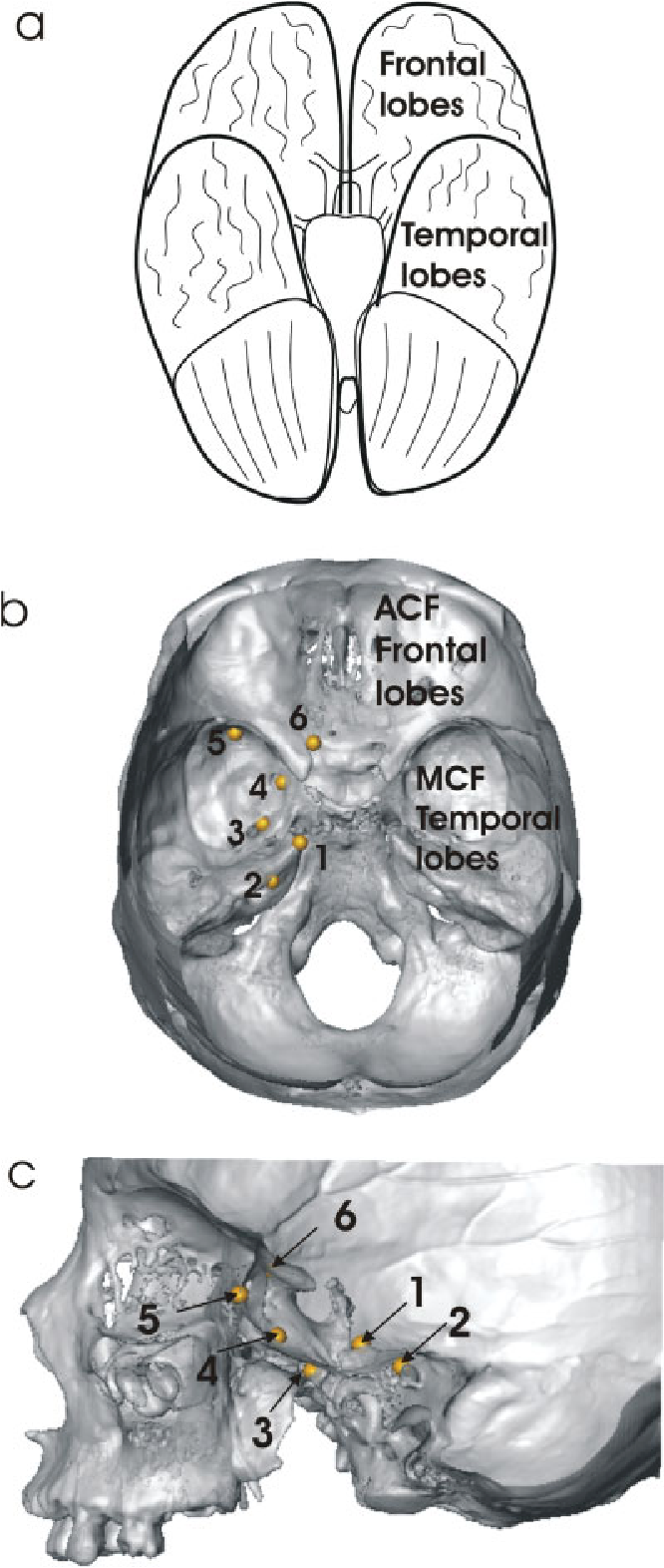 Figure 1 From Middle Cranial Fossa Anatomy And The Origin Of Modern