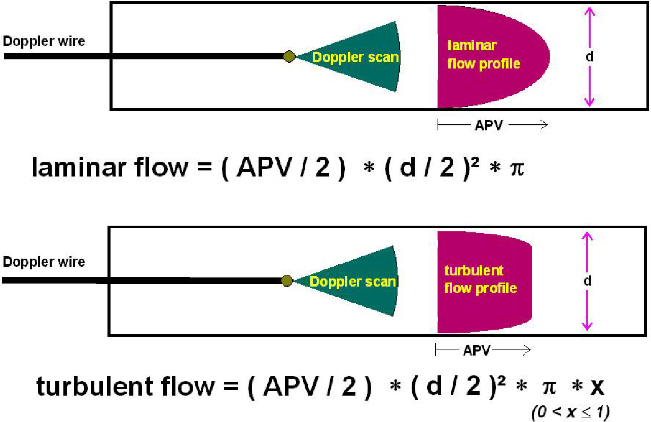 Turbulent flow as a cause for underestimating coronary flow reserve ...