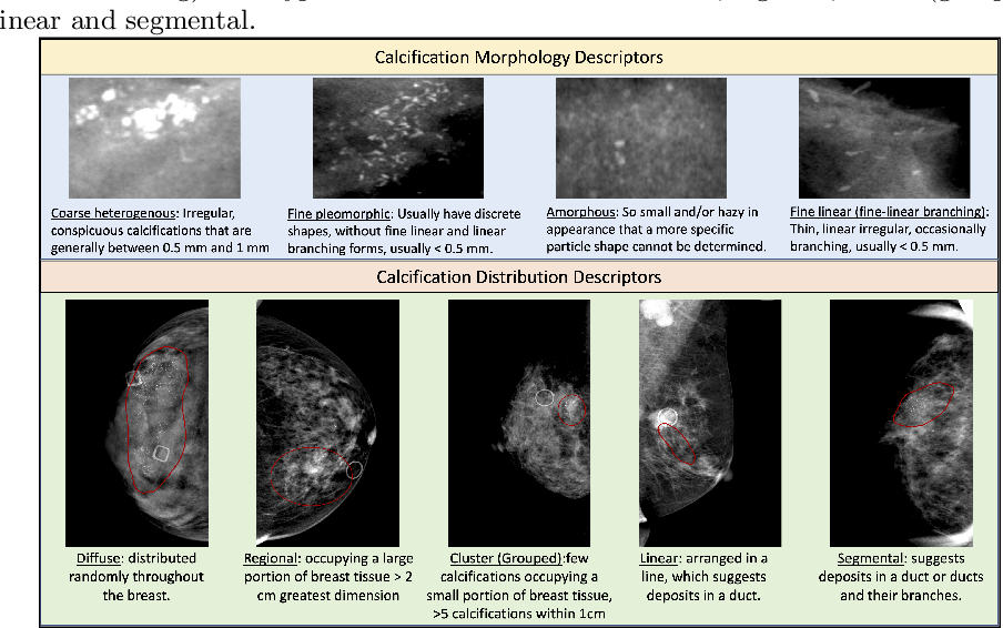 Figure 1 for Multi-task Graph Convolutional Neural Network for Calcification Morphology and Distribution Analysis in Mammograms
