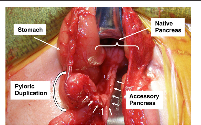 Pyloric duplication with communication to the pancreas in a neonate ...
