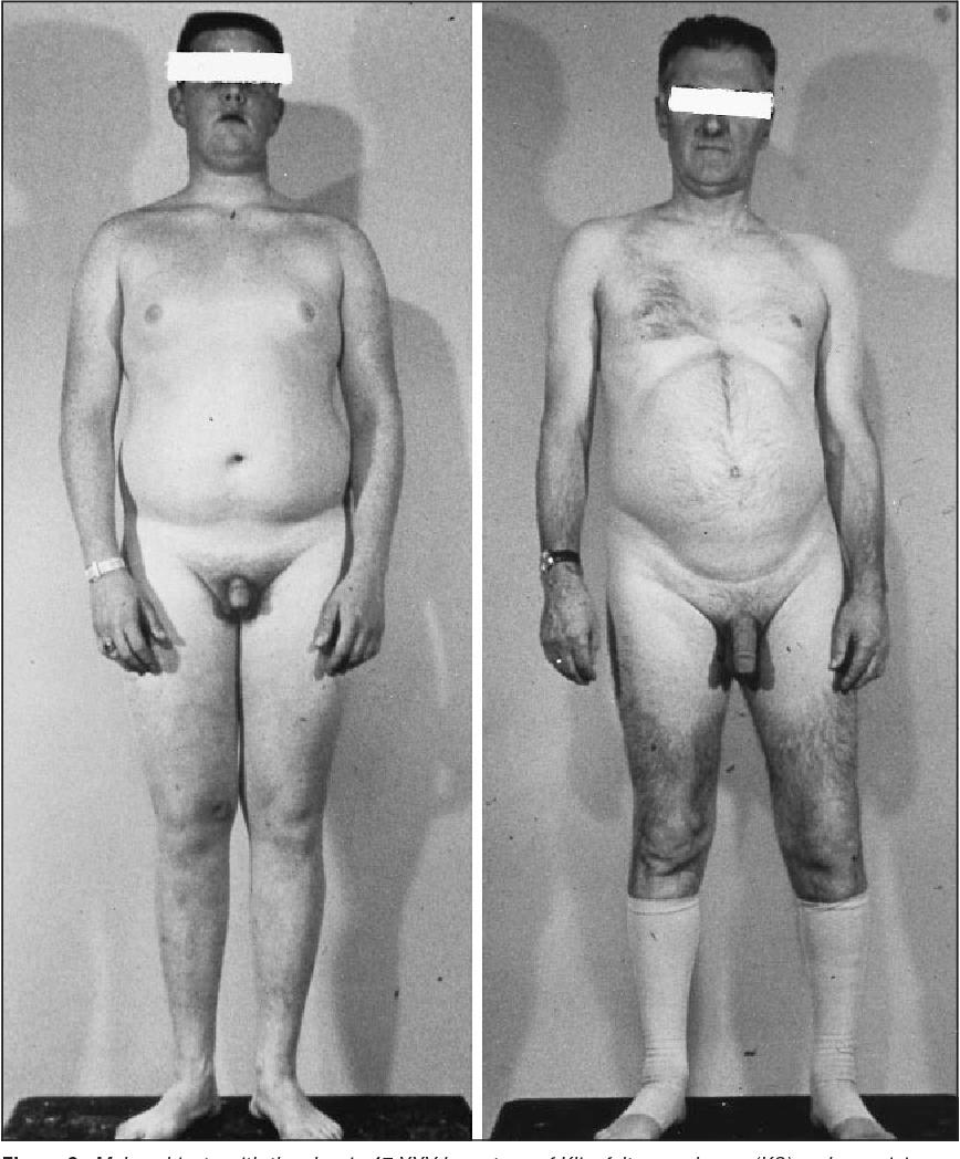 pubic fat male