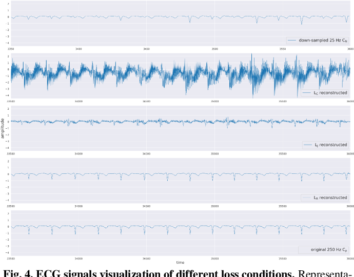Figure 4 for ECG Signal Super-resolution by Considering Reconstruction and Cardiac Arrhythmias Classification Loss