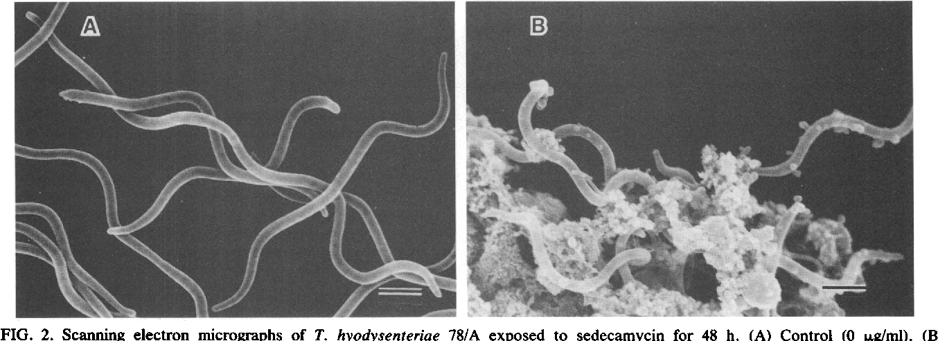 FIG. 2. Scanning electron micrographs of T. hyodysenteriae 78/A exposed to sedecamycin for 48 h. (A) Control (0 ,ug/ml). (B) Sedecamycin (3.13 ,ug/ml). Bars, 1 ,um.