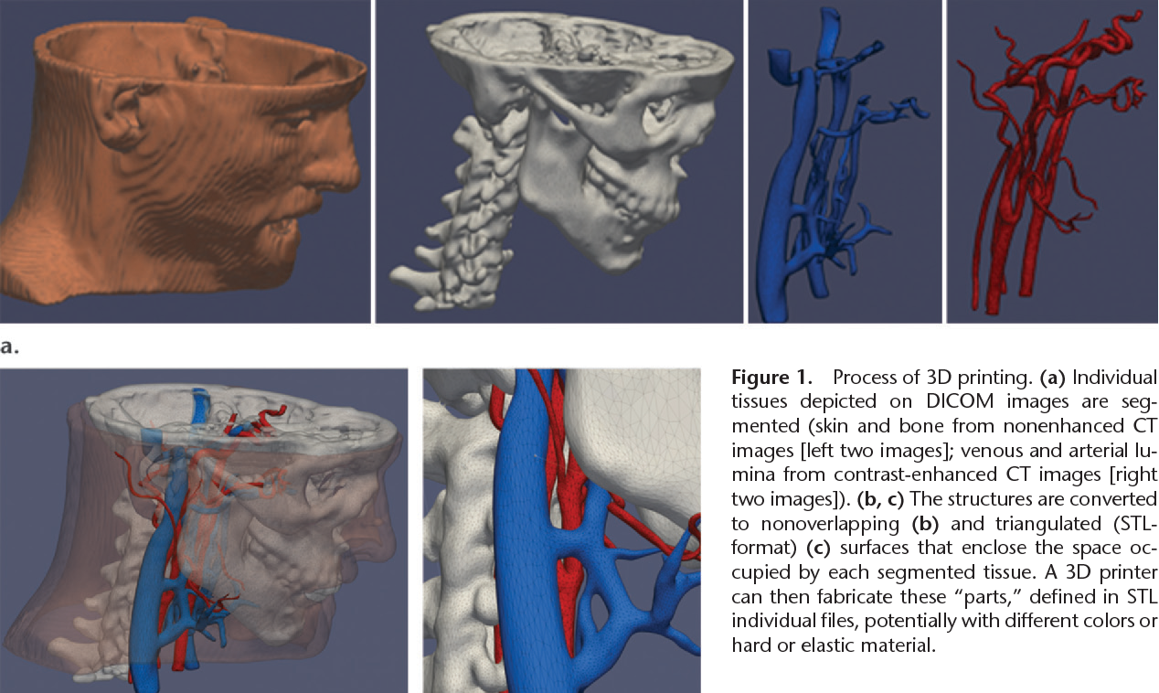 Figure 9 from Medical 3D Printing for the Radiologist. - Semantic ...