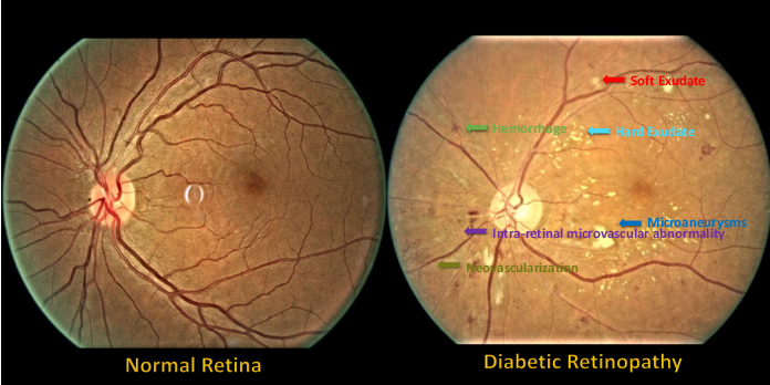 Figure 1 for A Benchmark for Studying Diabetic Retinopathy: Segmentation, Grading, and Transferability