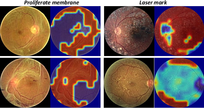 Figure 3 for A Benchmark for Studying Diabetic Retinopathy: Segmentation, Grading, and Transferability